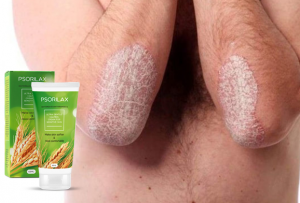 Psorilax крем, съставки, как да нанесете, как работи, странични ефекти