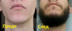 Smart Beard Spray къде да купя, аптека