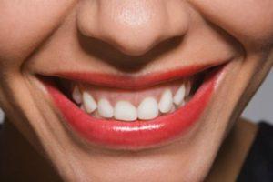 Smile Pen pareri, forum, comentarii